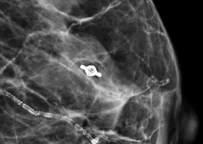 Mammographic imaging of Tumark Vision in breast tissue