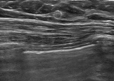 Tumark Vision in ultrasound, 5 months after marking following completion of NACT (6xTCbHP) with tumor findings not (no longer) clearly definable